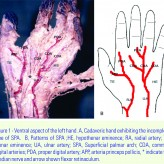 The Incomplete Superficial Palmar Arch