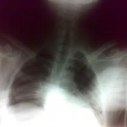 A Case of Simultaneous Bilateral Anterior Shoulder Dislocation