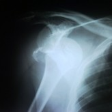 Case 8 – Jan -Mar 2012. Journal of Orthopaedic Case Reports