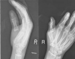 Simultaneous Volar Dislocations of Carpometacarpal and Metacarpophalangeal Joints of the Thumb