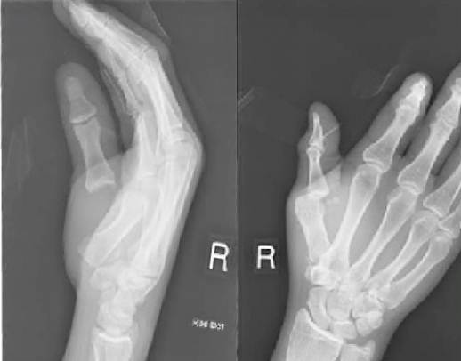 Dislocation of the thumb