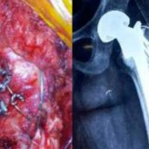 Greater Trochanter Reconstruction in Unstable  Intertrochanteric Fractures Treated With Cemented  Bipolar Hemiarthroplasty: A Technical Note