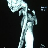 Painful Snapping and Pseudo-winging Scapula due  to a large Scapular Osteochondroma