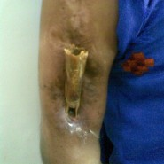 Flowerpot sequestrum of the Humerus Neglect for 10 years!!