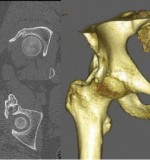 The Pelvic Digit: A Rare Congenital Anomaly as a Cause of Hip Pain- Abstract