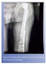 Ipsilateral Fracture Shaft Femur with Neglected Dislocation of Prosthesis: A Case Report