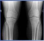A Rare Case of Simultaneous Acute Bilateral Quadriceps Tendon Rupture and Unilateral Achilles Tendon Rupture