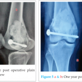 Arthroscope Assisted Intralesional Curettage of GCT