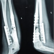 Modified Nicoll's Graft for Treatment of Gap Non-union of Ulna: A Rare Case Report