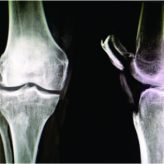 Superior Dislocation of Patella – A RareClinicalEntity