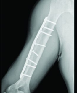 A Recurrent Stress Fracture of the Humerus following Fixation: The Effect of Implant Stress Shielding