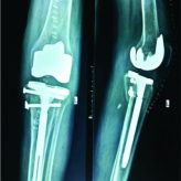 Complex Proximal Malunited Tibial Plateau FractureTreated Primarily by Total Knee Arthroplasty-A Case Report