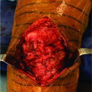 Surgical Technique: Repair of Patella Tendon Rupture in a Previously Harvested Tendon for an Anterior Cruciate Ligament Reconstruction
