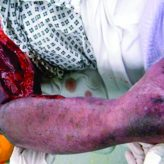 Upper Limb Phlegmasia Cerulea Dolens Secondary to Heparin-induced Thrombocytopenia: A Case Study