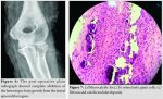 Calcific Tendonitis of the Elbow in an Adult – A Case Report and Review of the Literature