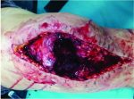 Open Periprosthetic Patellar Fracture after Total Knee Replacement