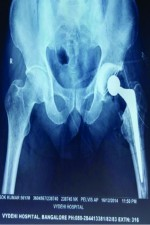 A Case Report: An Acute Thrombus in the Femoral Artery following Total Hip Arthroplasty