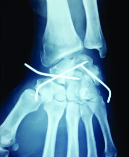 Floating Forearm with Terrible Triad Injury of the Elbow: A Case Report
