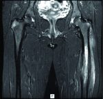 Chronic Recurrent Multifocal Osteomyelitis: ACase Report with Atypical Presentation
