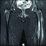 Chronic Recurrent Multifocal Osteomyelitis: A Case Report with Atypical Presentation