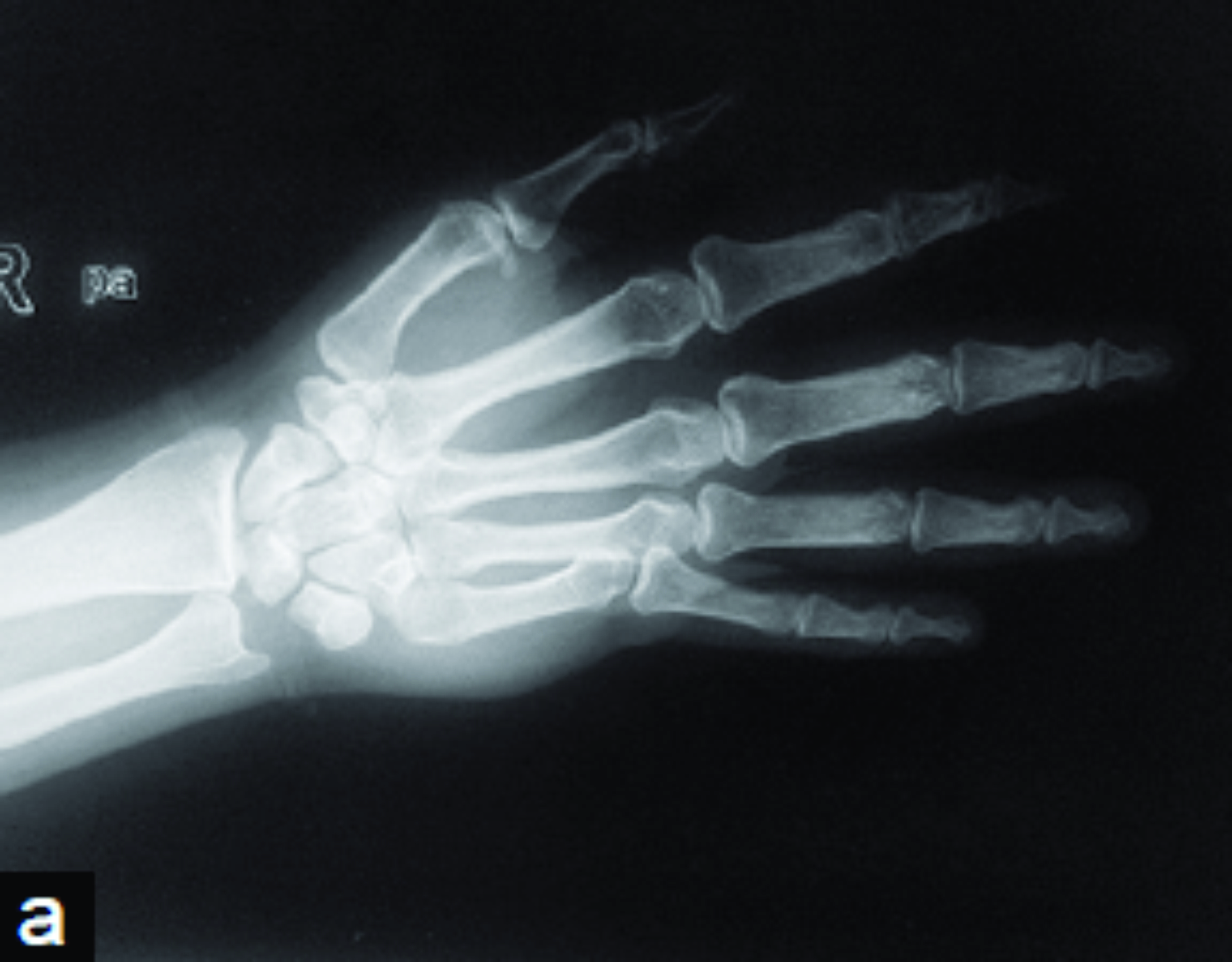 An Isolated Pure Dislocation Of Fifth Carpometacarpal
