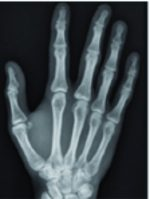 Case Report: Oblique Fracture of the Ulnar Sesamoid Bone of the Metacarpophalangeal Joint, a Rare Pathology