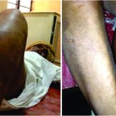 Dedifferentiated Chondrosarcoma of Proximal Tibia and Fibula with an Infected Ulcer: A Case Report