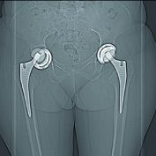 Aseptic Loosening after Total Hip Arthroplasty in an Acromegalic Patient: A Case Report