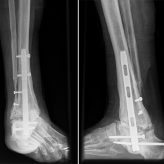 Bilateral Ankle Fusion in Leak Syndrome Induced Deformity: A Case Report