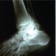 Retrocalcaneal Bursitis due to Rare Calcaneal Osteochondroma in Adult Male : Excision and Outcome