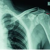 Intra-articular Loose Body with Concomitant Bankart Lesion after a Traumatic Shoulder Dislocation: A Case Report Jason B T Lim1, Andrew H C Tan1