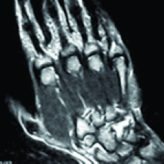 Hamulus Stress Fracture in a Batsman: An Unusual Injury in Cricket – A Case report and Review of Literature