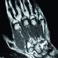Hamulus Stress Fracture in a Batsman: An Unusual Injury in Cricket–A Case report and Review of Literature