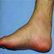 An Exceptional Case of Suture Granuloma 30 Years Following an Open Repair of Achilles Tendon Rupture: ACase Report