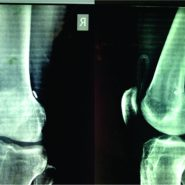 Retained Drain after Anterior Cruciate Ligament Surgery : A Silent Threat to an Athlete's Career: A Case Report