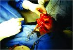 A Case of 3-month-old Neglected Elbow Dislocation Managed by Open Reduction and Cruciate Ligament Reconstruction Using Tendon Graft
