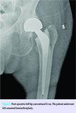 Compressive Femoral Neuropathy Associated with Iliopsoas Hematoma Complicating Hip Hemiarthroplasty: A Case Report