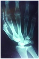 Open Anterior Peri-lunarDislocation of the Carp: A Case Report