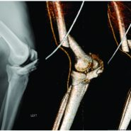 Head-on Allograft Transplantation: A Unique Case Report Where a Large Piece of Femoral Bone was Extruded from One Patient's Body and Impaled Another Patient's Tibia