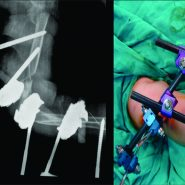 As a Definitive Choice of Treatment, Joint and Defect Spanning Multiplanar Tubular External Fixation in the Management of Pediatric Open Defective Supracondylar Humerus Fracture: A Case Report