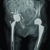 Acetabular Fracture after Hip Hemiarthroplasty: One Stage Procedure to a Total Hip Arthroplasty after Stabilization of the Fracture by Means of Cerclage Wires