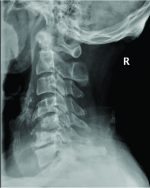 Unusual Presentation of Spinal Gout: 2 Cases Report and Literature Review