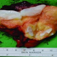 An Intramuscular Chondrolipoma of the Scapula: A Case Report of a Rare Tumor in an Unusual Location