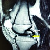 Double Posterior Cruciate Ligament Sign on Magnetic Resonance Imaging: Imaging Variants, Mimics, and Clinical Implications