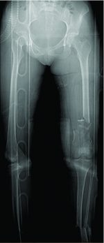 The Challenges of the Femoral Bone Loss in the Management of the Floating Knee IIB According Fraser: A Case Report