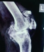 A Patient with Osteoarthritis Knee and Prior Patella Fracture: Single Stage Fixation and Total Knee Arthroplasty: A Case Report