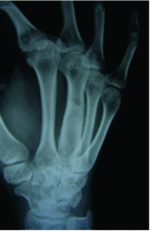 Aneurysmal Bone Cyst of 3rd Metacarpal, Management and Follow-up: A Case Report