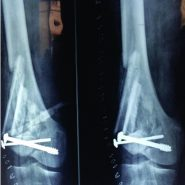 Biological Reconstruction of Knee Joint by Pedicled Patellar Transplant in a Recurrent Giant-cell Tumor of Lateral Femoral Condyle: A Case Report