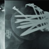 Propionibacterium acnes Infection of the Shoulder After a Manipulation Under Anesthesia for Stiffness Status Post Open Reduction and Internal Fixation Proximal Humerus: A Case Report
