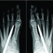 A Case Report of Spontaneous Second Toe Varus Deformity Correction after Hallux Valgus Deformity Correction by a Non-osteotomy Technique: Syndesmosis Procedure